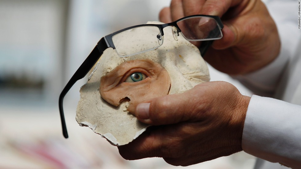 <strong>February 5:</strong> Anaplastologist Hernan Baron displays a prosthetic eye at his studio in Bogota, Colombia.