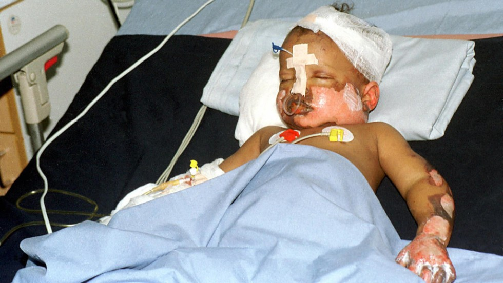 "When <a href=""http://www.cnn.com/2010/WORLD/africa/05/13/libya.planecrash.survivors/"" target=""_blank"">2-year-old Mohammed al-Fateh Osman became the sole survivor</a> of the crash of a Sudan Airways Boeing 737 in 2003, doctors were mystified. The boy was burned and lost part of a leg in the disaster, which took place near Port Sudan near Sudan's Red Sea. Doctors speculated that he was thrown clear of the plane."
