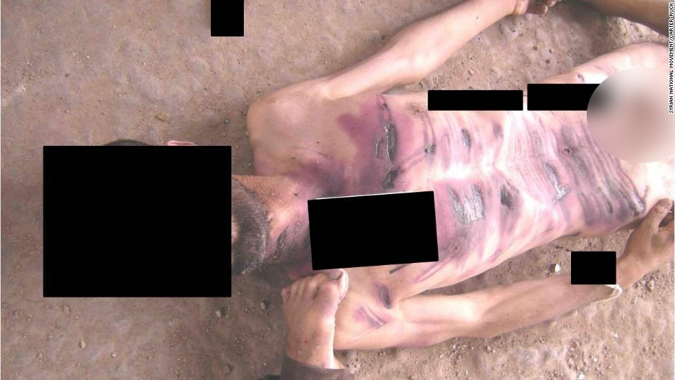 Wounds line the chest and abdomen of a man allegedly killed in Syrian government custody.