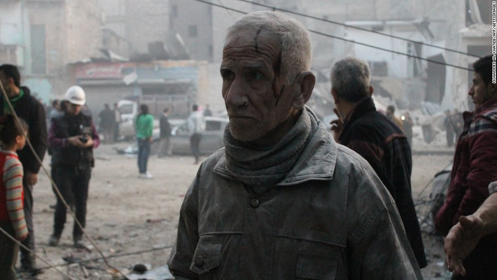 An injured man is covered in dust after an airstrike on January 29.