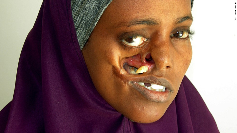 The shrapnel created a hole in Ayan's face, making it impossible for her to close her right eye and difficult to eat. Doctors plan to close the gap and repair the area using tissue from her forearm.