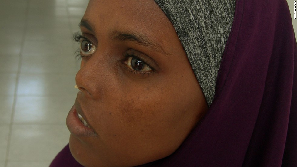 The left side of Ayan Mohamed's face was untouched by the shrapnel that shattered the right side during the Somali Civil War. Ayan is photographed here without the niqab that she wears to avoid stares and unwanted questions.