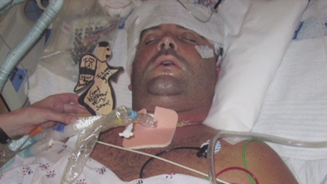 Beating victim copes with brain injury