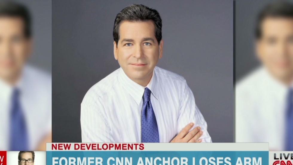 Former CNN anchor has arm U 39s Former Anchors Share