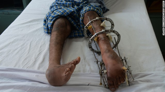 A polio patient lies on a bed during treatment at St. Stephen's Hospital in New Delhi, India.