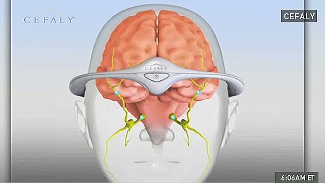 mxp headband device prevents migraines_00001611.jpg