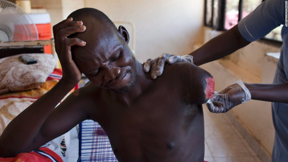 An amputee, injured during recent fighting in South Sudan, is assisted at a hospital in Juba, South Sudan, on Saturday, March 8.