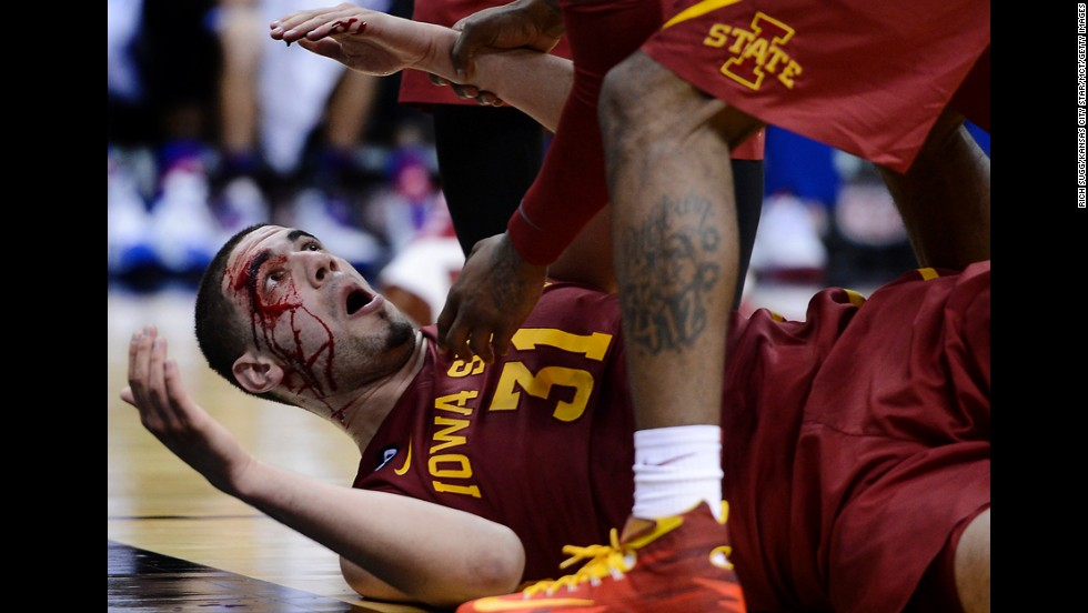 Iowa State's Georges Niang lies on the court bleeding after taking a charge against Kansas in the semifinals of the Big 12 basketball tournament Friday, March 14.