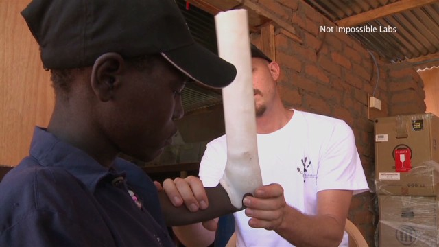 Refugee amputee gets 3-D printed arm