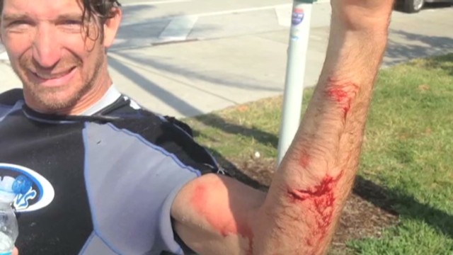 Ouch! A shark bit your arm