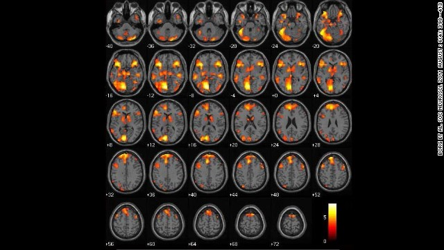 This image shows differences in brain activity between people who judge an act wrong and others who say it's not wrong.