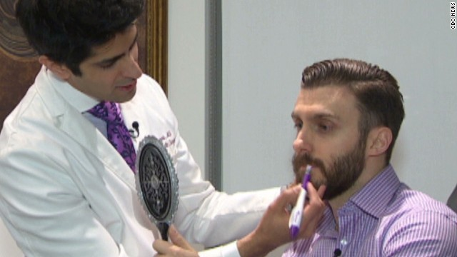 dnt beard implant trend_00002701.jpg