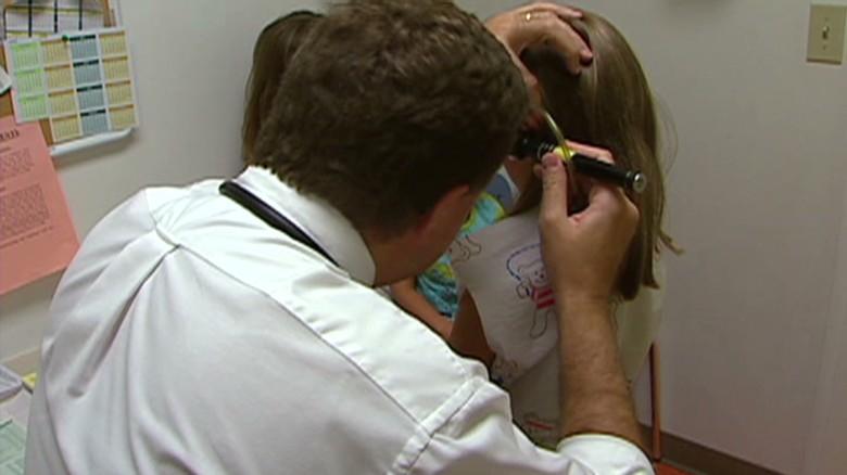 Brote de sarampión en California aumenta a 68 casos