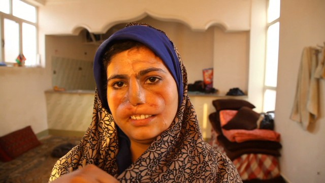 Afghan wife mutilated by drug-addict husband