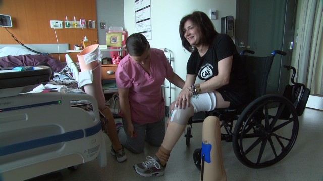 Boston bombing survivor learns to walk