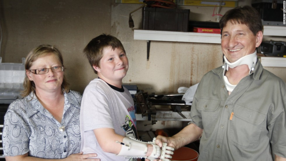 Dylan Laas shaking hands with his father Mark for the first time. Like Liam, Dylan was born with amniotic band syndrome, leaving him with no fingers on his right hand.
