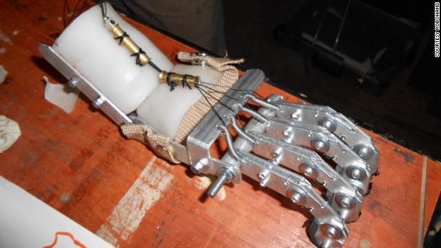robohand metal hand