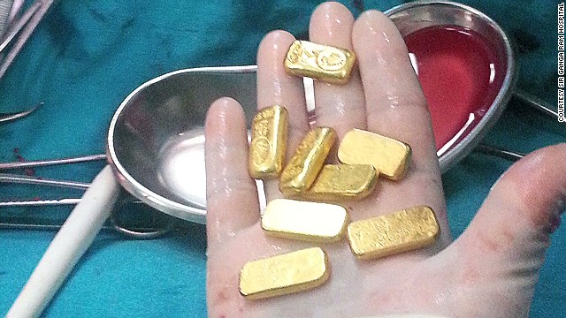 Indian surgeons extracted 12 small gold bars from a man's stomach.
