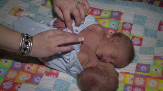 Mom won't separate conjoined twins