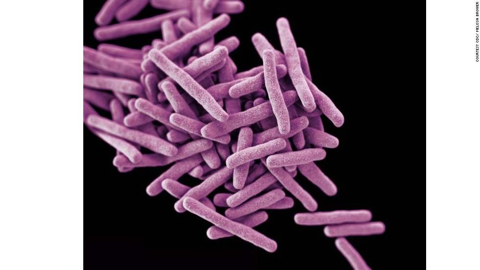 This rendering shows drug-resistant <em>Mycobacterium tuberculosis</em> bacteria, which cause TB. When people with lung TB cough, sneeze or spit, they propel TB bacteria into the air. <br />A third of the world's population has latent TB, which means they have been infected by TB bacteria but are not (yet) ill and cannot transmit the disease.