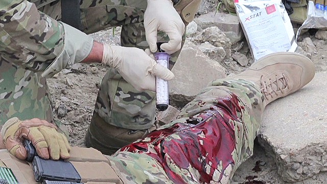 Invention seals gunshot wound in seconds