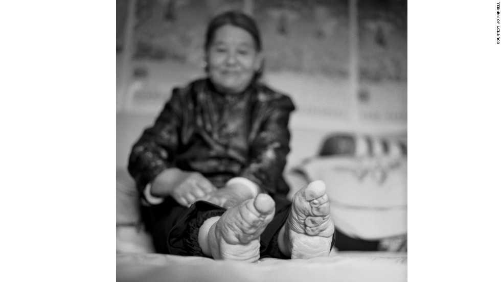"""Su Xi Rong had the most beautiful feet in her village. Her feet had the ideal shape, which not only has the toes wrapped, but also the heel compressed towards the toes to create a crevice in the arch of the foot that was considered highly erotic for the husband,"" says Farrell."