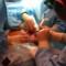 foetal surgery exit procedure