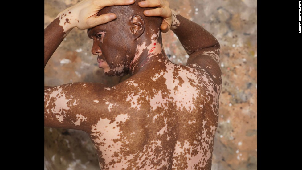 "Lee Thomas, pictured, said vitiligo challenged his personal identity as an African-American man. Darkness is a sign of strength, he said, and it was a process to acknowledge that he didn't lose his identity. ""Color has nothing to do with the integrity of who I am,"" Thomas said."