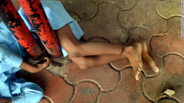 o go with story 'India-disabled-rights-poverty' by Rachel O'Brien In this photograph taken on May 20, 2014 nine year old Indian boy Lakhan Kale is tied with a cloth rope around his ankle, to a bus-stop pole in Mumbai. The nine-year-old boy dressed in blue lay listlessly on the pavement in the scorching Mumbai summer afternoon, his ankle tethered with rope to a bus stop, unheeded by pedestrians strolling past. Lakhan Kale cannot hear or speak and suffers from cerebral palsy and epilepsy, so his grandmother and carer tied him up to keep him safe while she went to work, selling toys and flower garlands on the city's roadsides. AFP PHOTO/ PUNIT PARANJPE (Photo credit should read PUNIT PARANJPE/AFP/Getty Images)