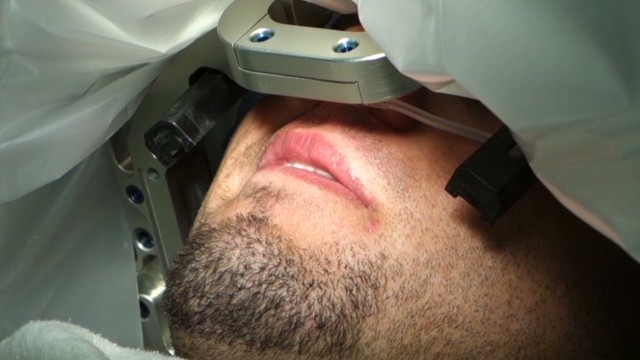 Deep brain stimulation helps OCD patient