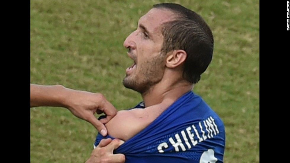"Chiellini shows an apparent bite mark on his shoulder. ""Suarez is a sneak, and he gets away with it because FIFA want their stars to play in the World Cup,"" Chiellini told Sky Sports Italia."
