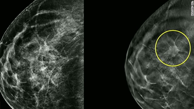Do you need a 3-D mammogram?