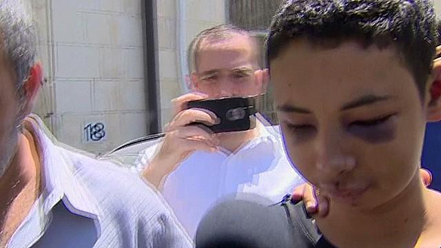 Beaten American teen speaks to CNN