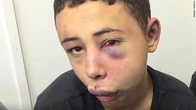 American allegedly beat by Israeli cops