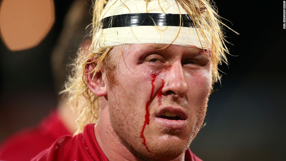 Beau Robinson of the Queensland Reds leaves the field at halftime of a Super Rugby match against the Western Force on Saturday, July 5, in Perth, Australia.