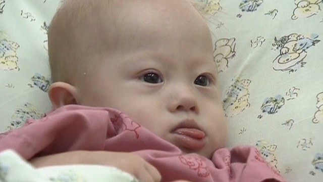 Down syndrome surrogate baby abandoned