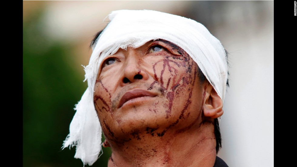 A man with dried blood stains on his face stands on a street in Longtoushan on August 4.