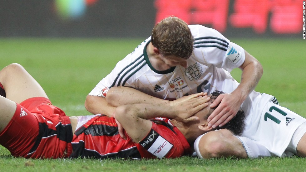Stefan Kiessling of German soccer club Bayer Leverkusen touches the head of FC Seoul player Lee Woong-Hee during a preseason match in Seoul, South Korea, on Wednesday, July 30.