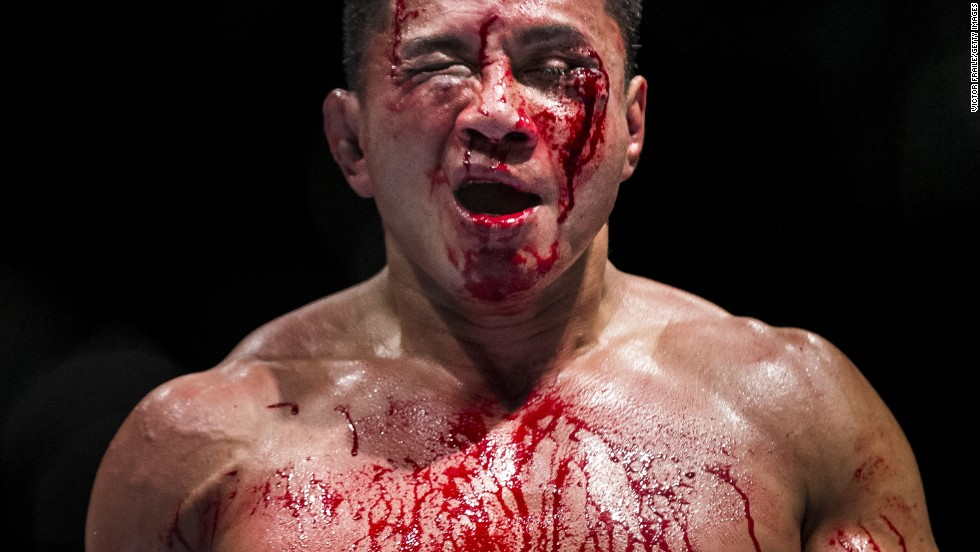 American fighter Cung Le bleeds during his Five Round middleweight fight against Michael Bisping of England during UFC Fight Night on Saturday, August 23, in Macau, China.