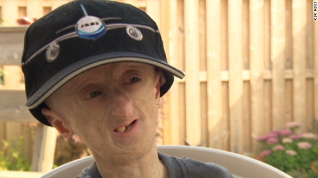 pkg canada teen fights aging disease progeria_00015614.jpg
