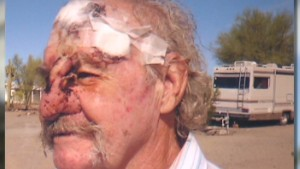 Navy vet loses nose, blames VA delays