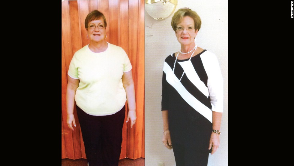 Sharon Huffmire from Midway, Arkansas, is 104 pounds lighter.