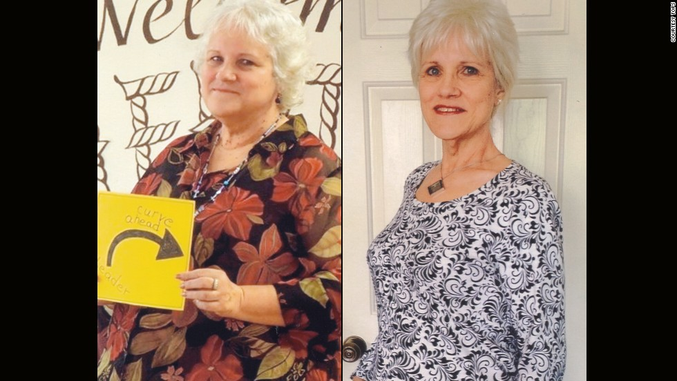 Kathy Kirby from Temecula, California, lost 136 pounds.