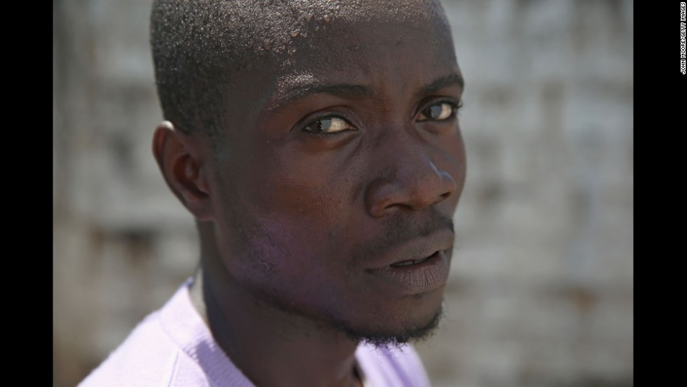 Mohammed Wah, a 23-year-old construction worker, said that Ebola killed five members of his extended family and he thinks he contracted the disease while caring for his nephew.