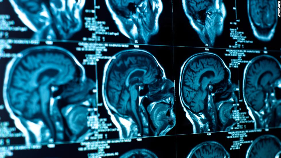 'Smart drugs' have been shown to improve memory and cognitive function