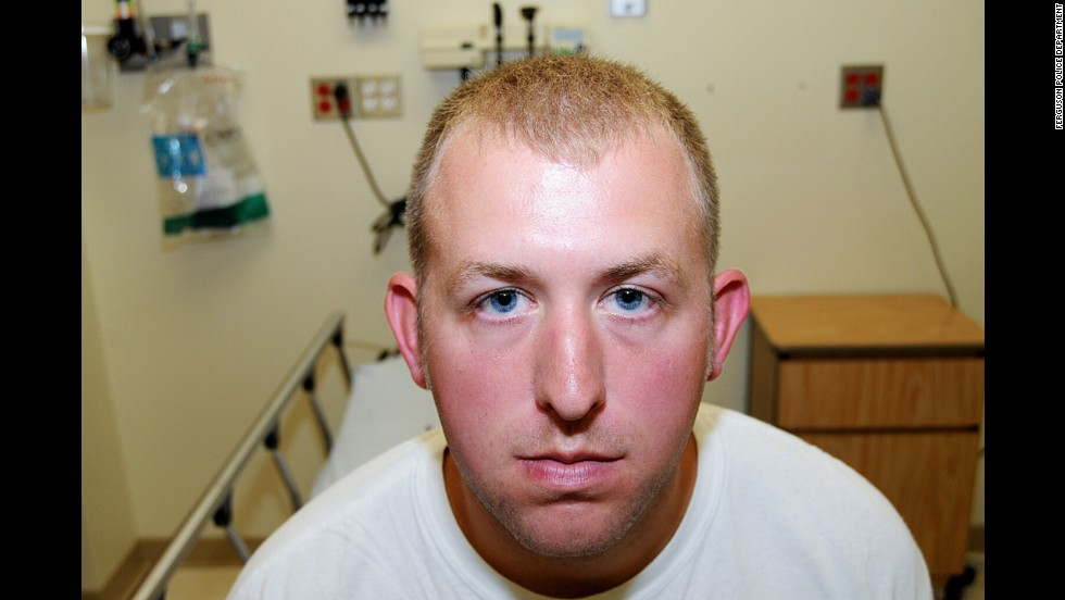 "Officials released never-before-seen photos of Ferguson, Missouri, police officer Darren Wilson after it was announced Monday, November 24, that a grand jury had chosen not to indict Wilson for the shooting death of Michael Brown. These photos were taken on the day of Wilson's altercation with Brown, and they were released as part of the evidence that was presented to the grand jury. <a href=""http://www.cnn.com/2014/11/25/justice/ferguson-grand-jury-documents/index.html"">Read what Wilson told the grand jury</a>"
