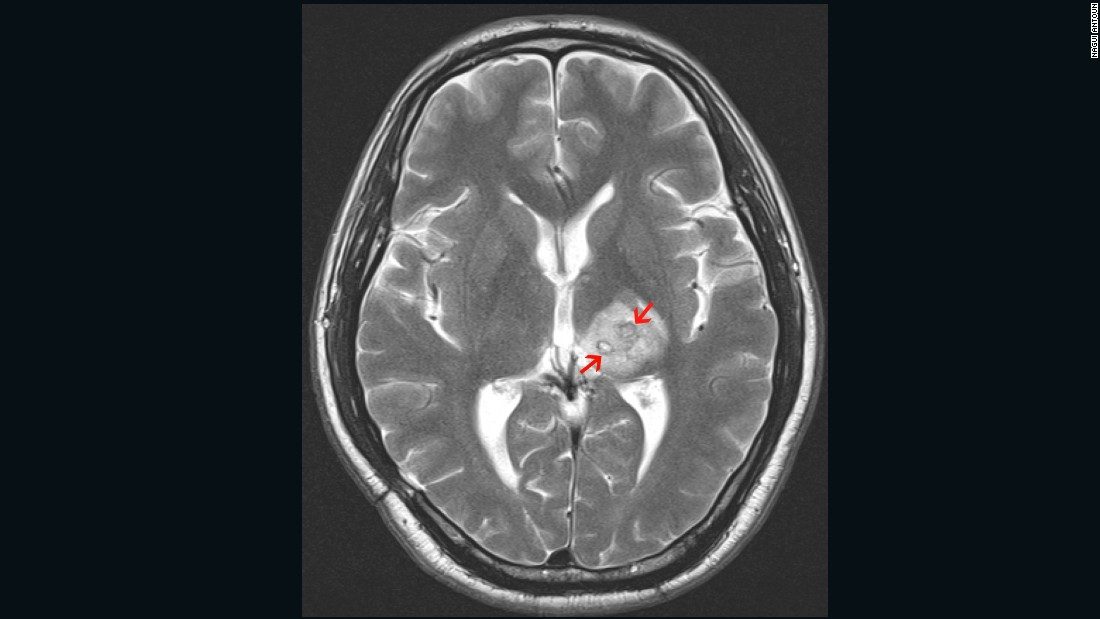 In 2013 a British man of Chinese ethnicity was diagnosed with a tapeworm, <em>Spirometra erinaceieuropaei,</em> inside his brain. The 50-year old first experienced headaches four years earlier and was treated for tuberculosis. The arrows point to the mass created by the worm in his brain.