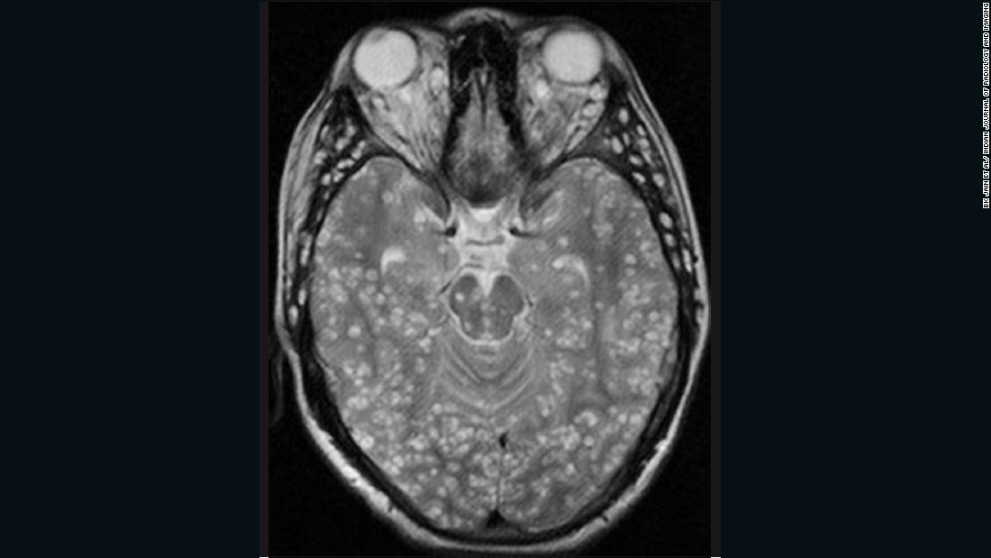... but infection with the worms' juvenile (larval) form has worse consequences as the younger worms can migrate to other parts of the body. If they enter the nervous system the worms can form cysts in the brain, which have severe consequences, including epilepsy. In the radiology image above, the cysts are identified as white lumps within the brain.
