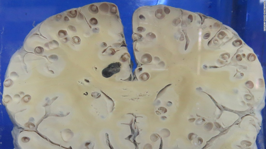 The young larvael forms of Taenia solium can migrate to the brain where they burrow to form cysts. This is a brain specimen of a patient in China with the resulting condition, known as neurocysticercosis.