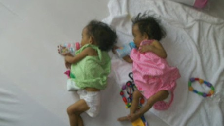 pkg cbc liver donor plea twins_00000820.jpg